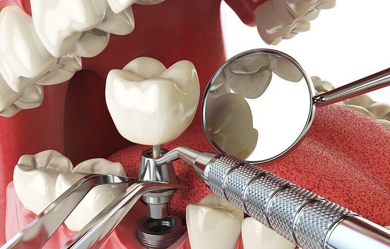 Does Careington Dental Insurance Cover Dental Implants?